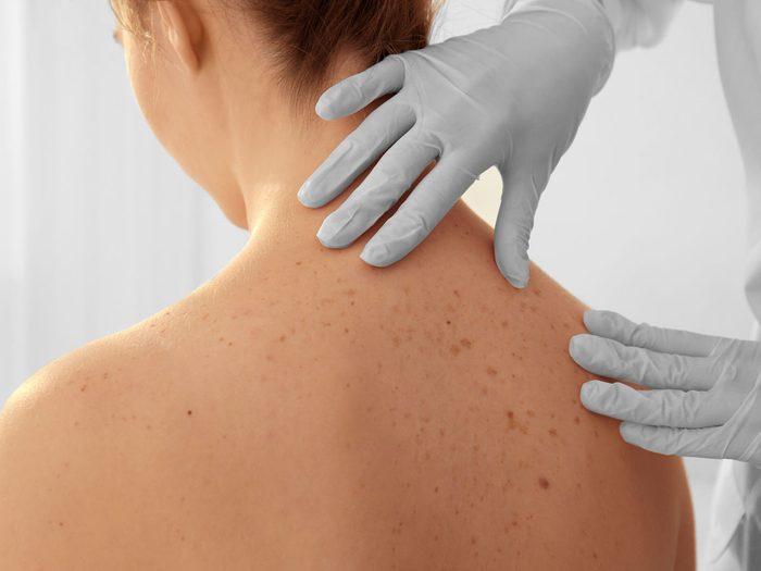 skin cancers | melanoma