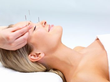 5 health conditions helped by acupuncture