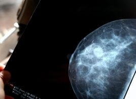 4 things you should know about DCIS and screening mammograms