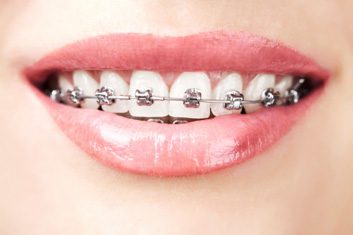 braces for adults
