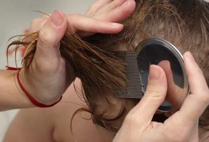 Natural home remedies: Head lice