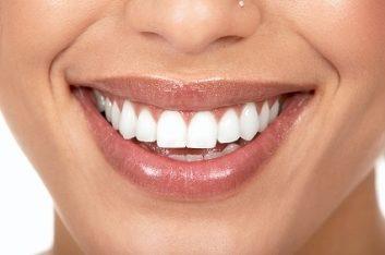 whiteteeth-62137612.jpg