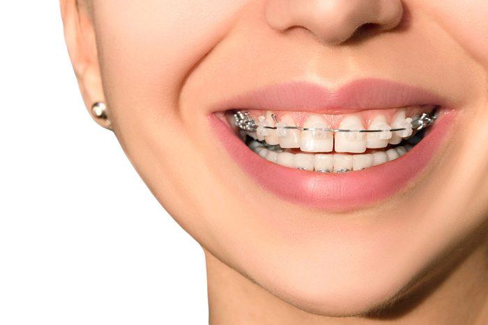 adult-orthodontics-braces