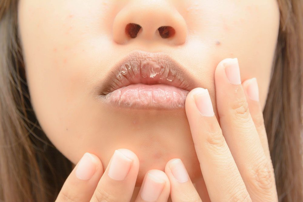 dehydrated cracked lips