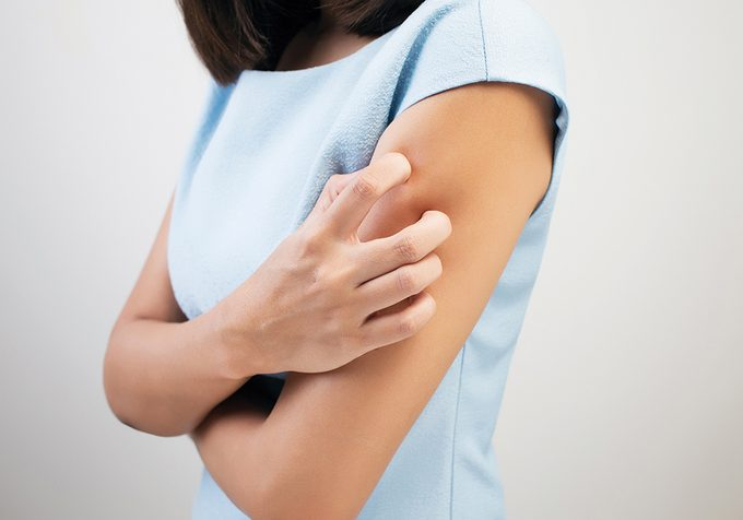 eczema flare-up