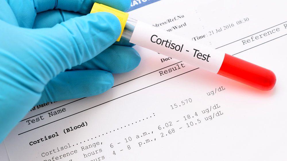 blood cortisola lab sample