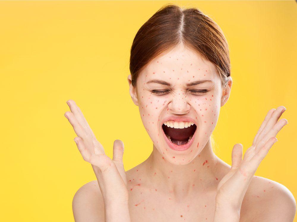 Tea tree oil can help cure chicken pox