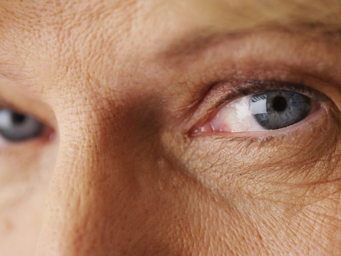 Turmeric Benefits for Skin, ageing skin
