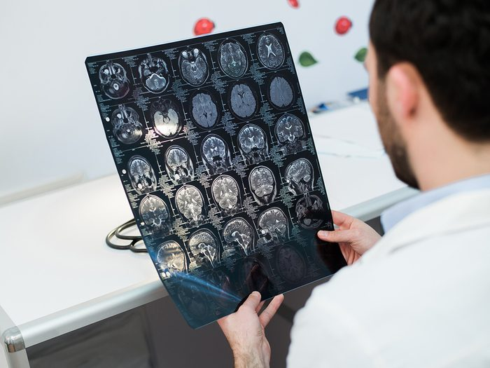 Health myth, a doctor checks brain scans