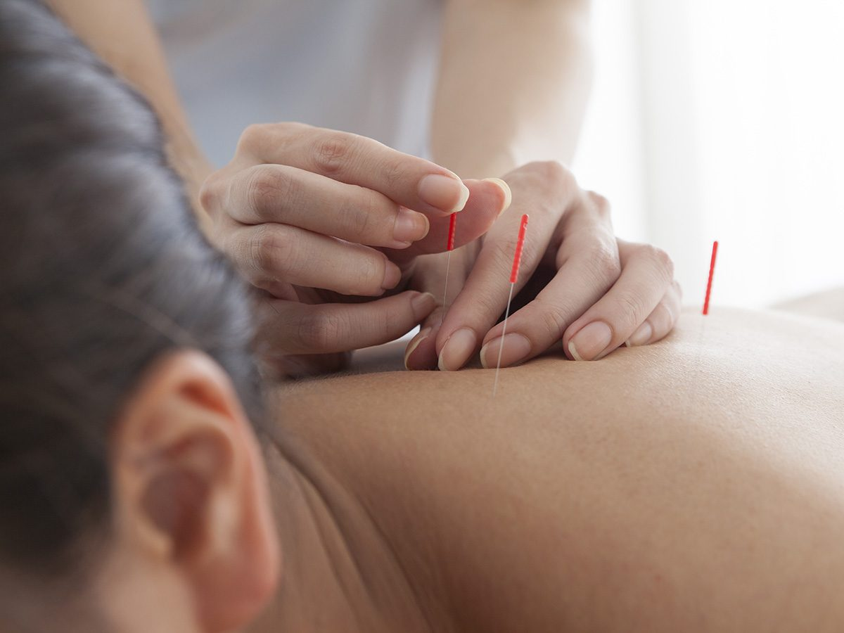 Menopause symptoms, woman receives acupuncture on her back