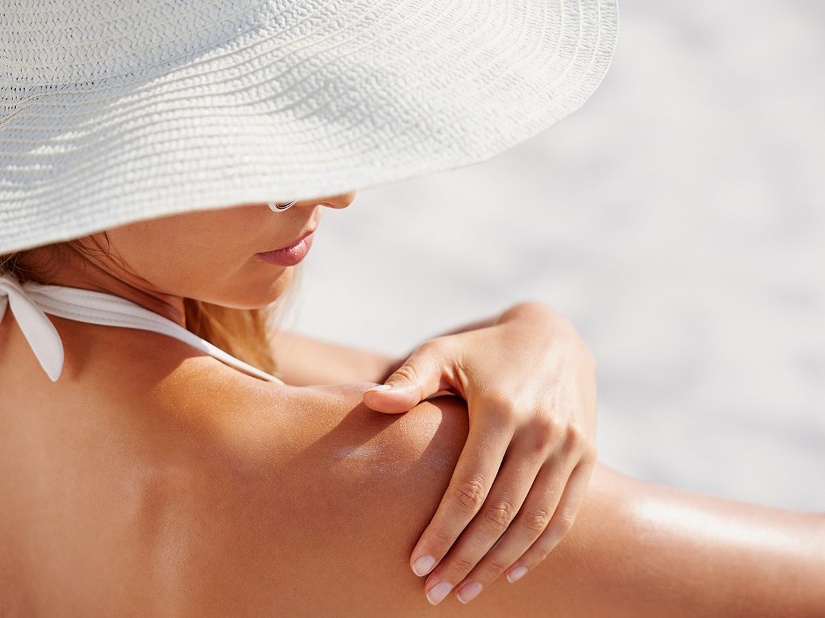 Eczema, woman applies sunscreen on her shoulder at the beach