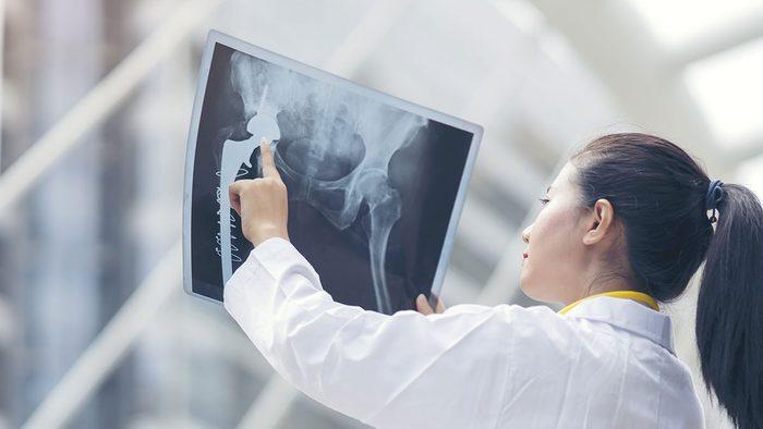Benefits of Magnesium, x-ray