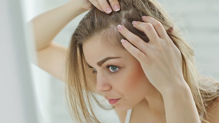 Itchy scalp, woman checking out her scalp
