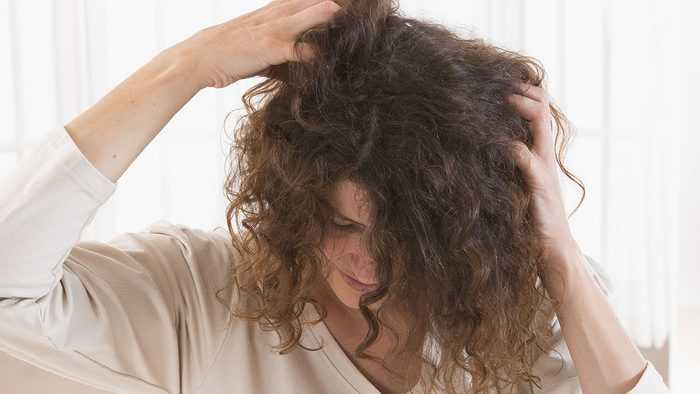 Itchy scalp, woman itching her scalp