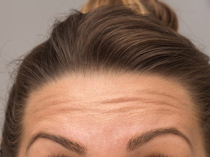 facial wrinkles forehead