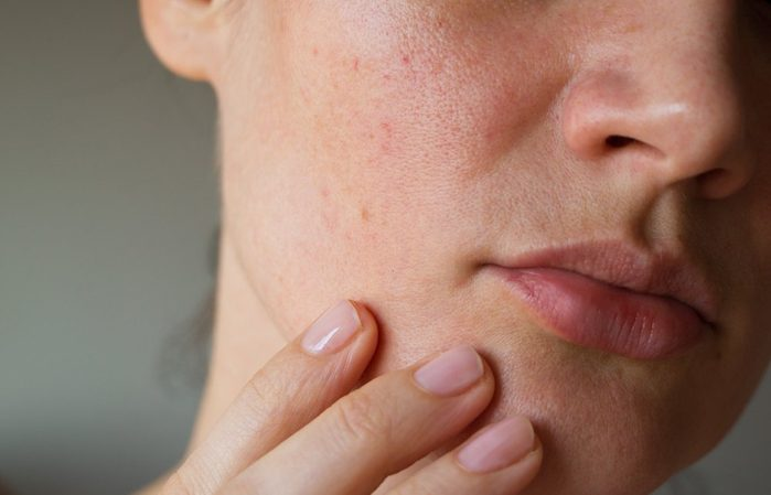 skin says about your health | pores on the skin of the face