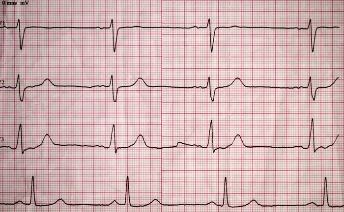Real tape with the cardiogram of man. Image of Electrocardiogram close-up.