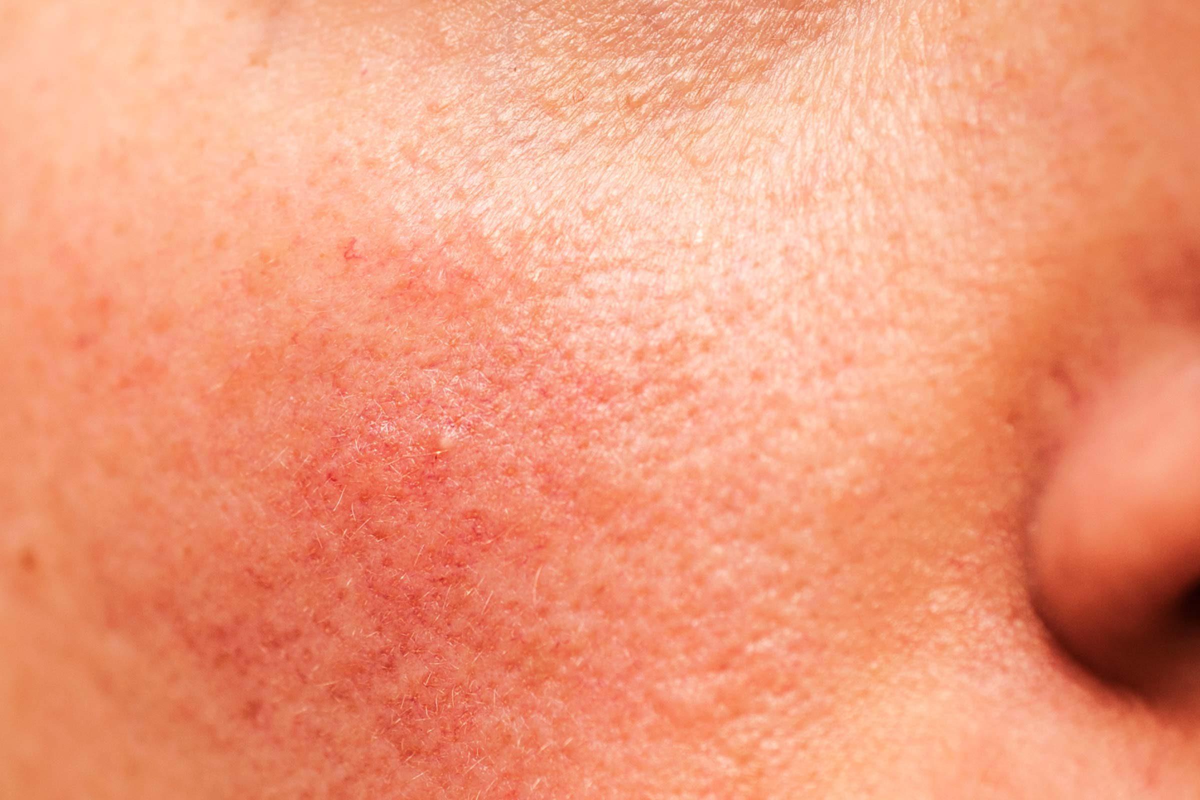 skin disease