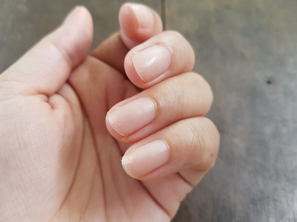things that wreck your teeth   Close up of nails that have problem by peeling after doing manicure. Health and beauty problem.