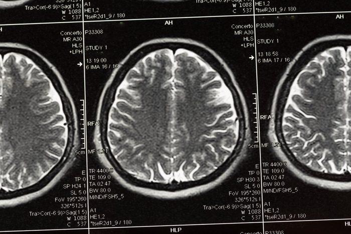 brain during sex