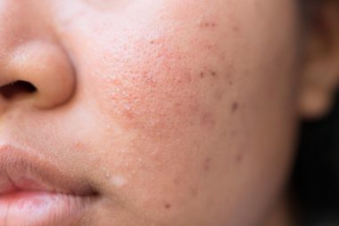 05-hyperpigmentation-The-5-Types-of-Acne-Scars-and-How-to-Treat-Them-435055855-frank60