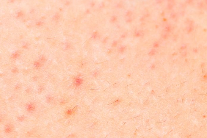 close-up of skin with folliculitis