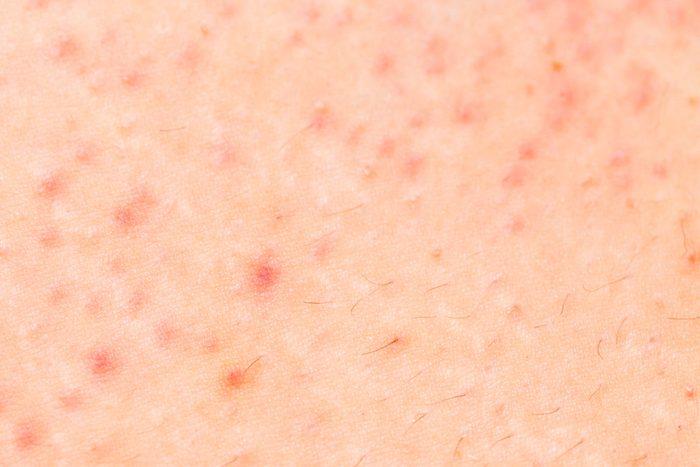 close-up of skin with folliculitis