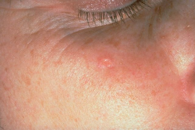 person with redness and bumps on bridge of nose (Sebaceous hyperplasia)