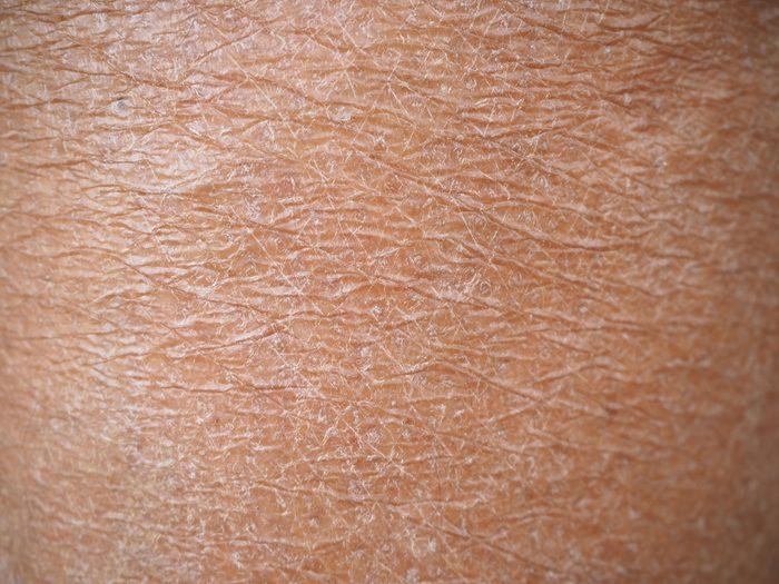 rough skin