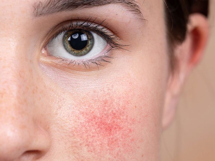 woman skin issue