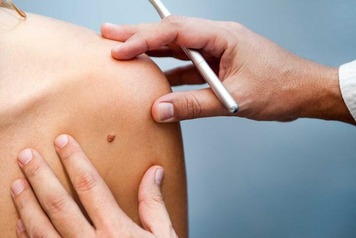 worst skin care advice mole removal