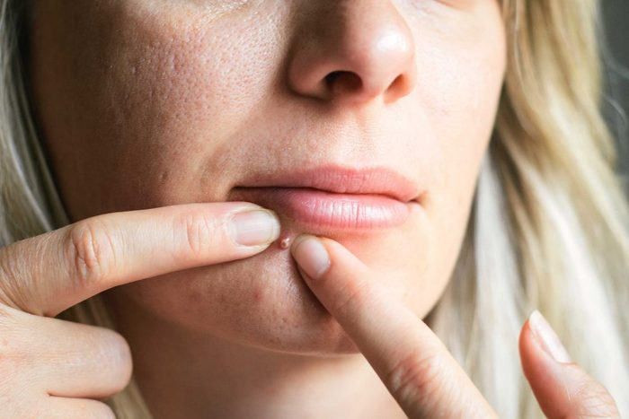 worst skin care advice pimple