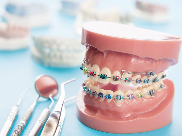 orthodontist secrets braces