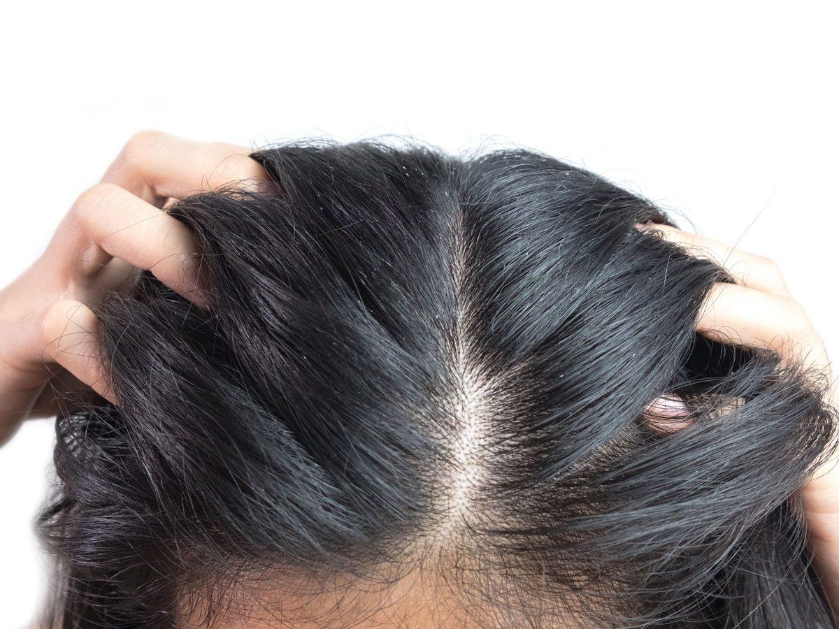 scalp psoriasis - woman itching scalp