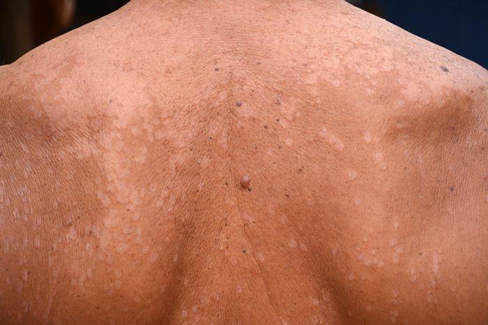 Tinea versicolor/Pityriasis versicolor on the skin