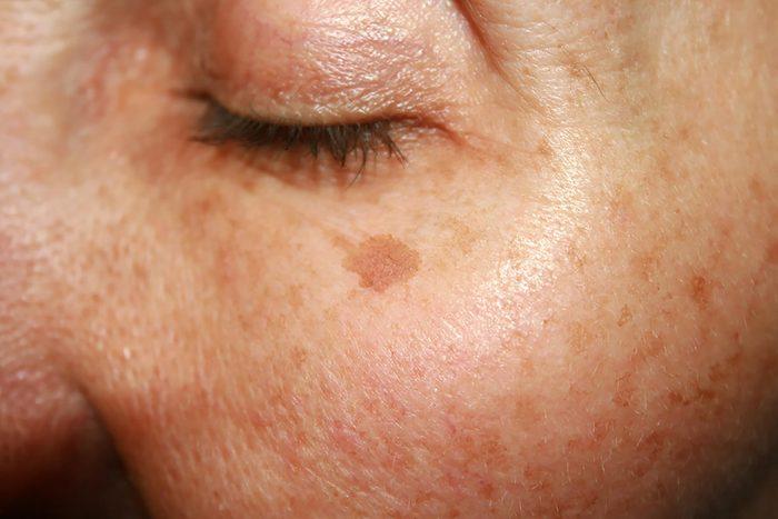 age spot under eye