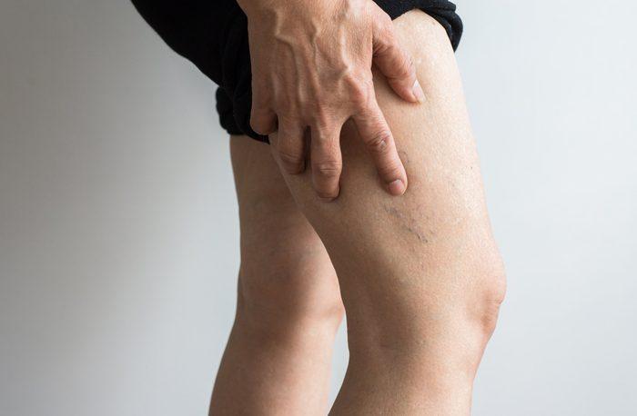deep vein thrombosis   veins on elderly woman's leg