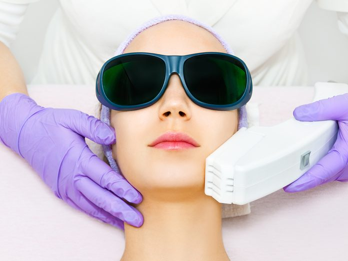 what to know before getting a laser treatment | Young,woman,receiving,laser,treatment
