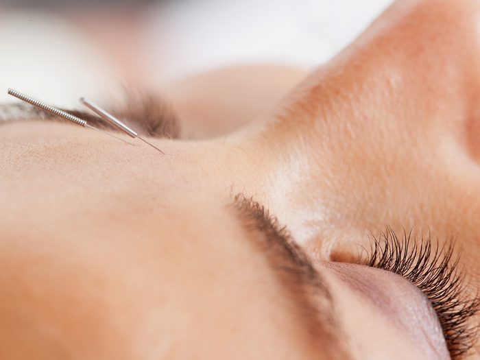 cosmetic acupuncture   acupuncture facial   Macro,detail,of,facial,acupuncture,treatment,,shallow,dof,focus,on