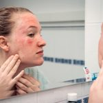 7 Reasons You Get Hives on Your Face—and What to Do About Them