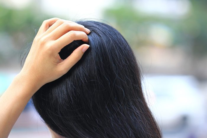 scalp psoriasis vs. dandruff   Close Up Of Woman Hand Itchy Scalp Fungus Haircare Concept